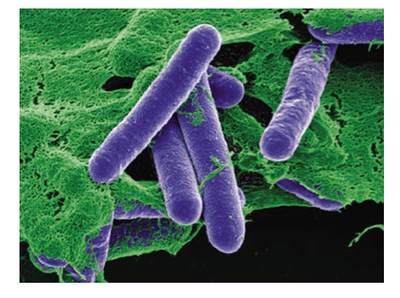 400px-SEM_Clostridium_Botulinum Food Borne Disease caused by Bacteria | Intestinal tracts of animals