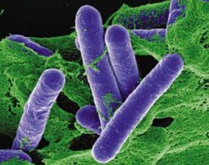 Clostridium botulinum Food Borne Disease Bacteria