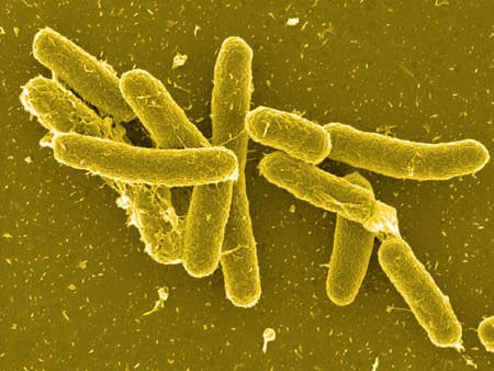 salmonella3 Food Borne Disease caused by Bacteria | Intestinal tracts of animals